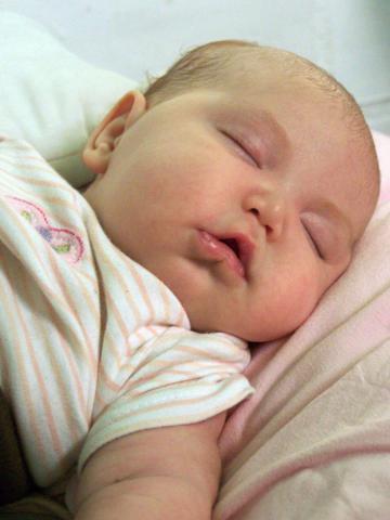 La costra láctea. ¿Por qué mi bebé tiene escamitas en la cabeza?