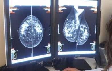 Crioablación: una alternativa a la cirugía frente al cáncer de mama